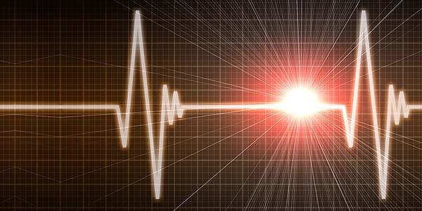 Build our Own ECG/EKG Unit